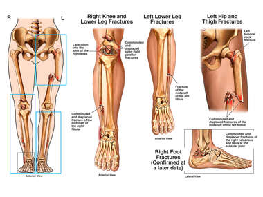 Female Lower Extremities with Fractures to the Left Femur, Bilateral Lower Legs and Right Ankle