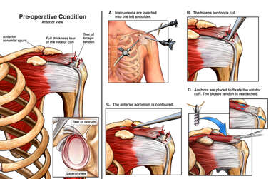 Left Shoulder Injuries with Arthroscopy/Open Shoulder Repair with Biceps Tenodesis