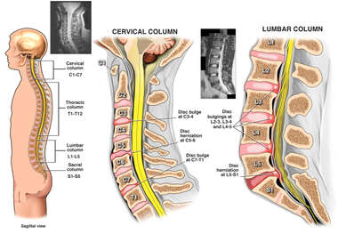 Cervical and Lumbar Disc Injuries