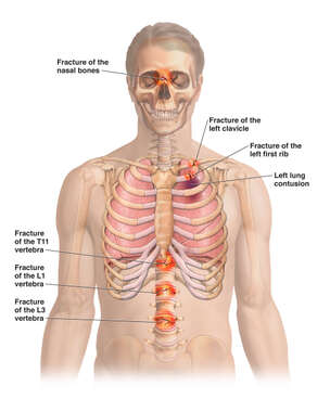 Male Torso with Fractures to the Face, Collar Bone, and Spine