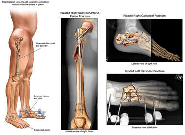 Repair of Fractured Feet and Right Femur