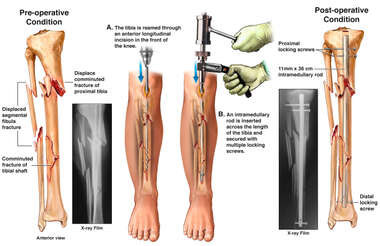Right Tibia and Fibula Fractures and Surgical Fixation