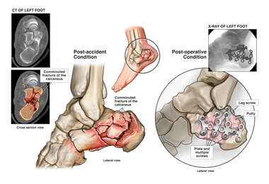 Left Calcaneal Fracture with Surgical Fixation