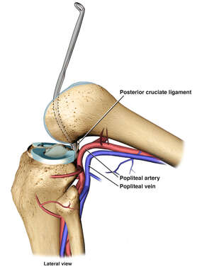 Posterior Cruciate Ligament Retractor in Place