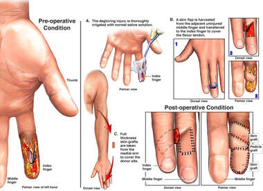 Degloving Injury to the Left Index Finger with Surgical Flap Coverage