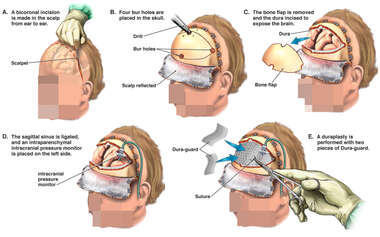 Bifrontal Craniectomy and Placement of Intraparenchymal