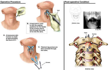 Surgical Repair of Odontoid Fracture