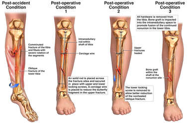 Progression of Leg Fracture Condition