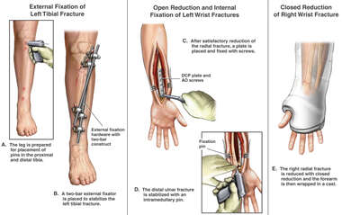 Surgical Fixation of Post-accident Left Leg and Forearm Fractures