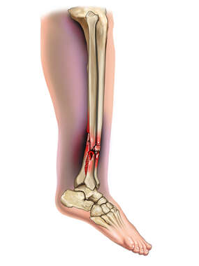 Tibia and Fibular Fracture with Fibular Dislocation