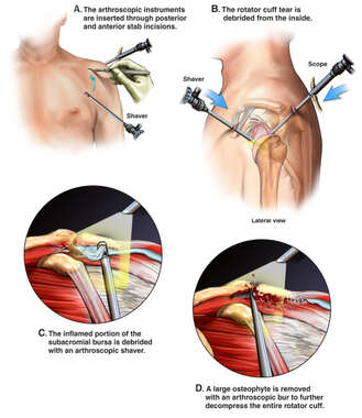 Arthroscopic Repair of Left Shoulder Injuries
