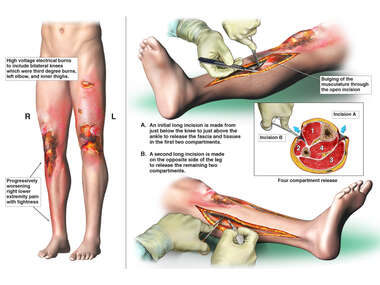High Voltage Electrical Burns with Right Leg Four Compartment Fasciotomy