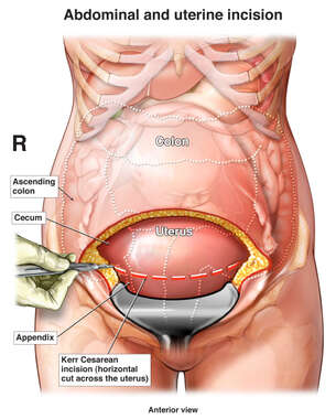 Cesarean Section with Subsequent Bowel Perforation
