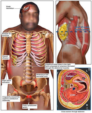 Black Male Figure with Post-accident Injuries to the Head, Thorax, Abdomen and Pelvis