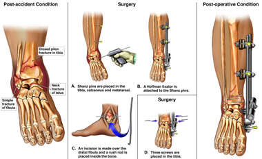 Ankle and Foot Fracture Fixation