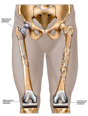 Male Lower Extremities with Proposed  Future Post-operative Condition