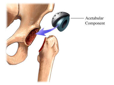 Total Hip Replacement-Acetabular Component
