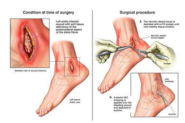 Infected Left Ankle Wound with Surgical Debridement and Drainage