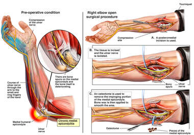 Right Elbow Injuries with Surgical Repair