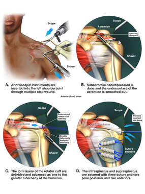Surgical Procedure on the Left Shoulder