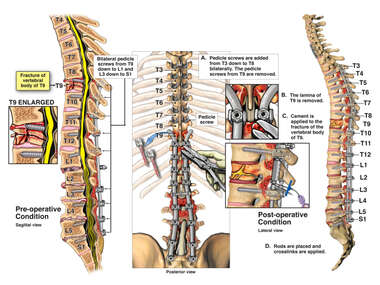 Additional Spine Injury with Extension of Fusion Up to T3