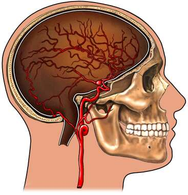 Skull with Arteries of the Brain and Berry aneurysm, Lateral View