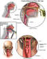 Anatomy of the Piriform Recess
