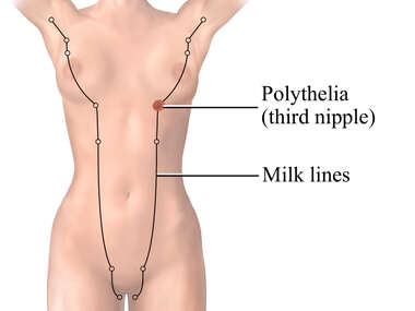 Polythelia - Supernumerary Nipple