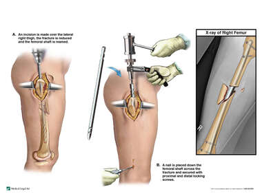 Surgical Fixation of Femur Fractures