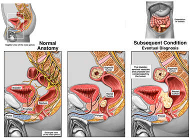 Progression of Rectal and Sigmoidal Cancer