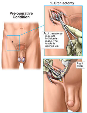 Right Inguinal Orchiectomy