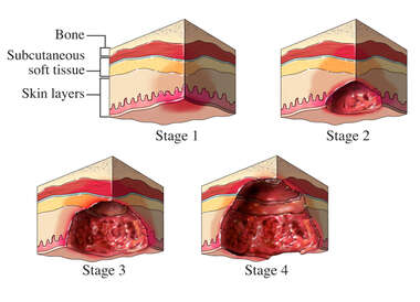 Formation of A Pressure Sore