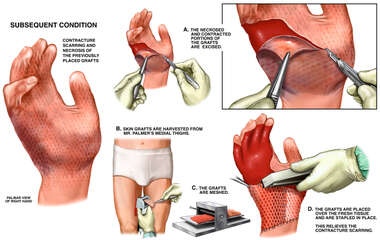 Contracture Deformities of the Hand with Surgical Repairs