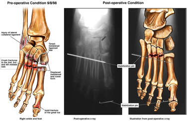 Lisfranc fracture with Surgical Fixation