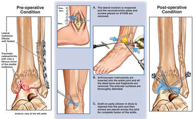Traumatic Osteoarthritis of the Ankle with Surgical Debridement and Fusion