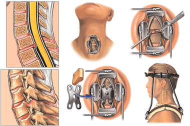 Cervical Spine Injuries with Subsequent Surgical Fusion