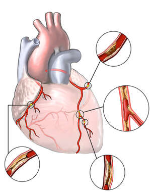 Coronary Artery Disease