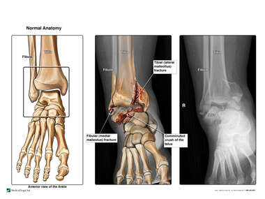 Comminuted Ankle Fracture