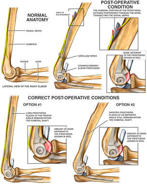 Transection of the Radial Nerve