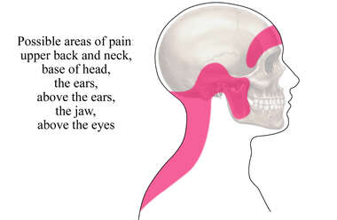 Tension Headache: Areas of Pain