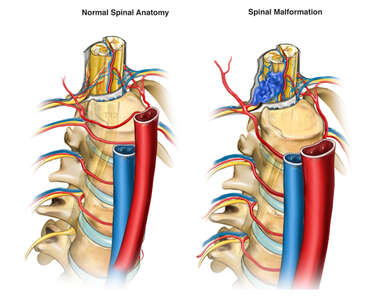 Spinal Malformation