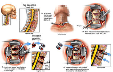 Cervical Spine Injuries with Double Level Discectomy and Fusion Surgery