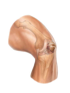 Chondromalacia of the Patella