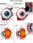 Anatomy of the Eye versus Injuried Eye (Damaged Cornea)