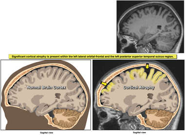 DTI Scanning of the Brain