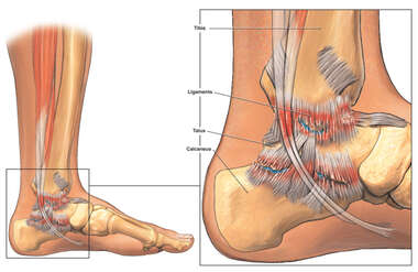 Post-traumatic Arthritis of the Left Medial Ankle and Foot