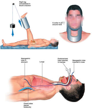 Male Figure with Leg in Traction, Cervical Collar in PLace, Airway and Chest Tubes