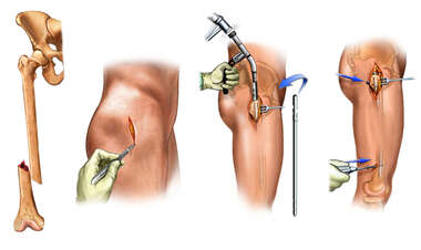 Right Distal Femoral Shaft Fracture Shaft Fracture