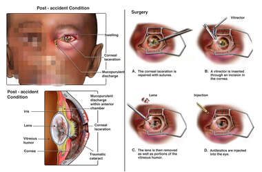 Traumatic Left Eye Injuries with Subsequent Surgical Procedure