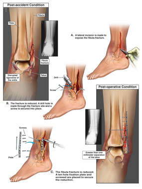 Left Ankle Injuries with Fibula Fracture Repair